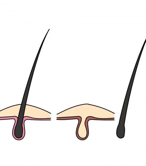 正常な頭皮と抜けた頭皮